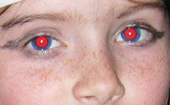 kırmızı göz hatası giderildi